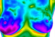 Breast thermogram image