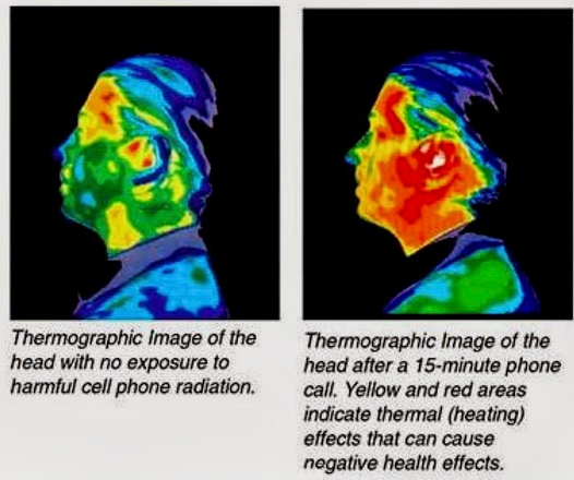 Thermogram before and after cell phone use